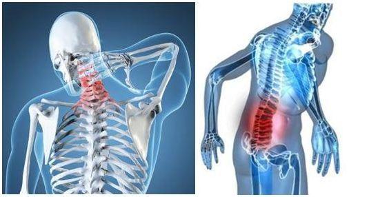 Dolencias de espalda